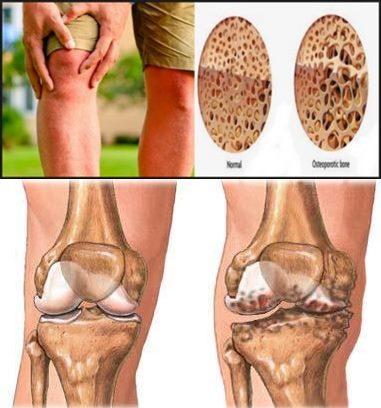 Cara Mengobati Keropos Tulang Lutut