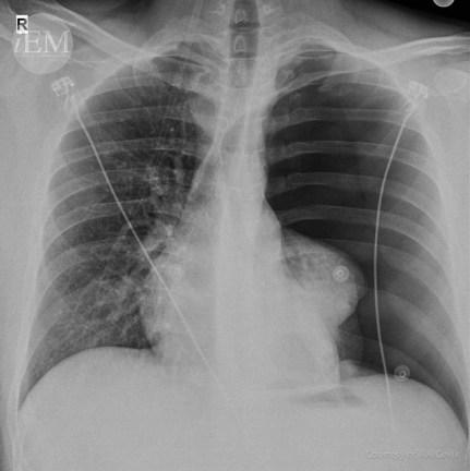 40.1 - Pneumothorax 1
