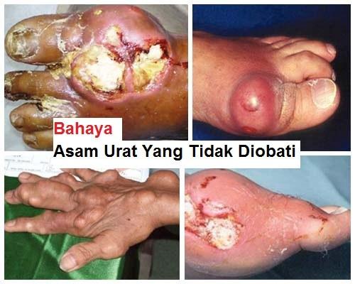 jari tangan kaku dan sakit yang sudah bengkak karena asam urat.