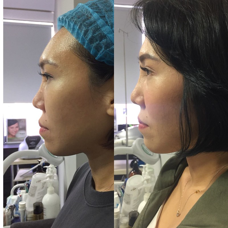 Nose Threadlift or Nose Fillers? | mshannahchia