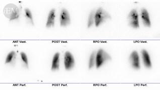 50.2 - chest pain - PE suspicion VQ scan