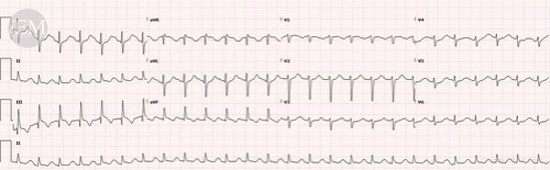 41.2 - ECG for suspected pulmonary embolus