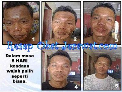 Salep Cream Obat Bopeng Parah