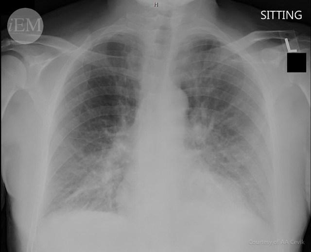 35.3 - pulmonary congestion