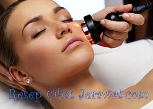 Biaya Terapi Laser Untuk Menghilangkan Bopeng di Wajah