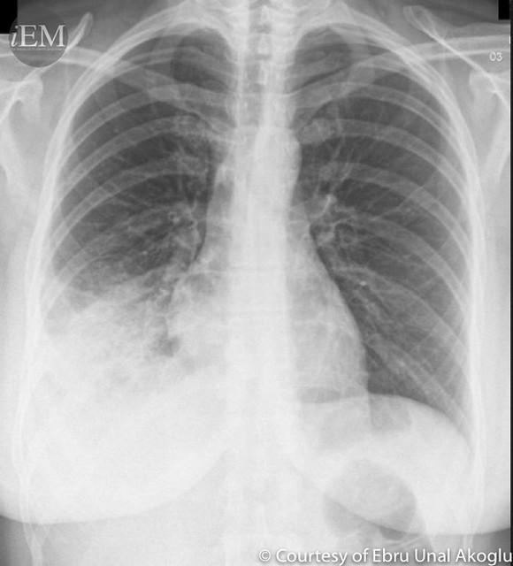 40 yo Female with respiratory distress