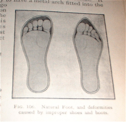 Natural foot, and deformities caused by improper shoes