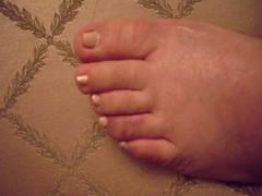 Broke my toe
