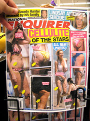Cellulite of the Stars