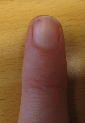 Finger with a hole in it