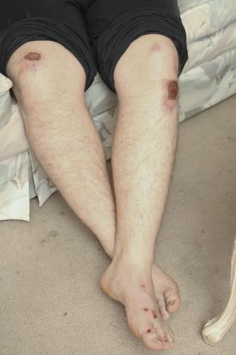 My banged up legs