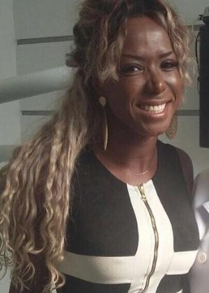 Ex-BBB Adélia faz cirurgia para retirada de bochechas