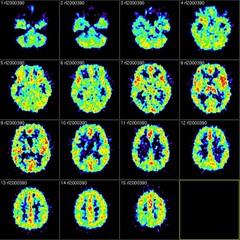 Sken mozgu
