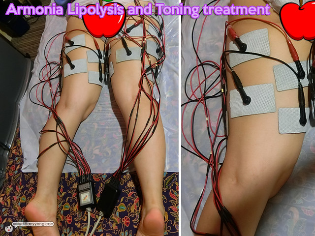 Annabelle Skin Armonia Lipolysis and Toning treatment