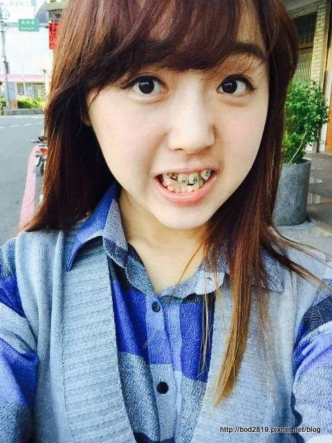 【新竹市】明皓牙醫-帶牙套真的會變瘦嗎?吃東西會痛嗎?拔牙可怕嗎?傳統牙套血淚分享(VS隱形牙套 ...