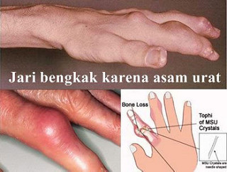 Jari Tangan Kaku Sakit Dan Membengkak Apa Obatnya