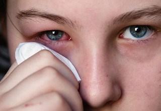 Cara Menyembuhkan Radang Mata Kronis Paling Mujarab