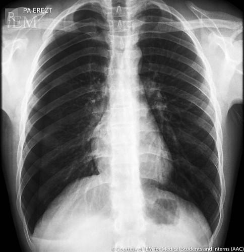 420 - right pneumothorax1