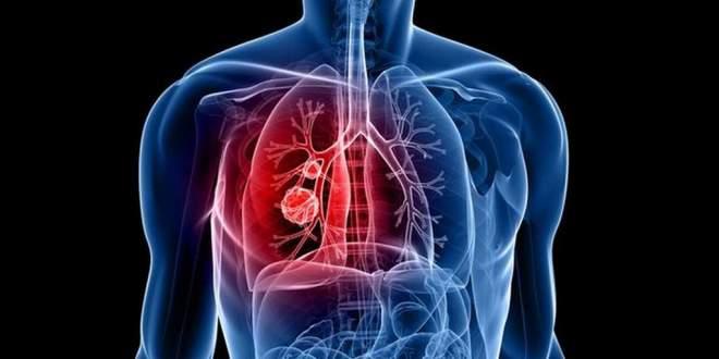 médicament-australie-cancer
