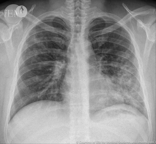377.1 - pneumonia1