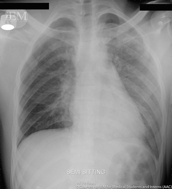 99.1 - chest xray left apical pneumothorax 1
