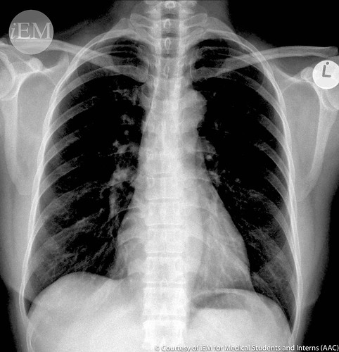 337.4 - PA chest x-ray overexposure