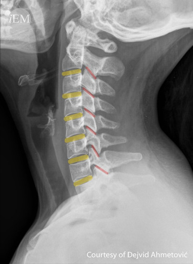 626.8 - Figure 8 - Uniform intervertebral cartilage spaces