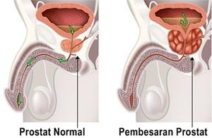Obat Tradisional Yang Membantu Atasi Prostat Bengkak