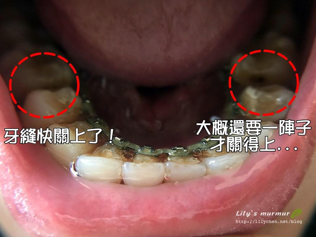 目前牙齒關牙縫的進度~