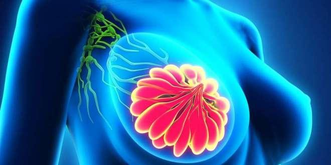 traitement-cancer-du-sein-nouvelle-approche