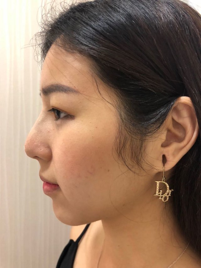 PDO Nose Thread Lift with SL Clinic | Samantha's Blog