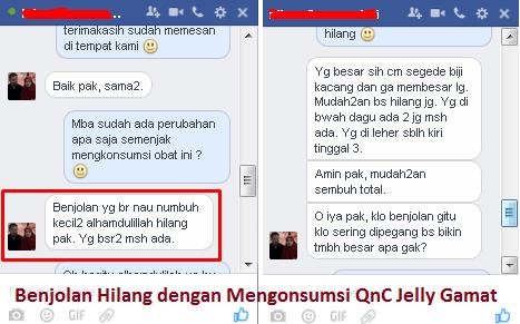 testimoni qnc jelly gamat ahlinya masalah benjolan