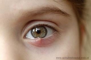 Cara Menghilangkan Benjolan Di Kelopak Mata Atau Kalazion