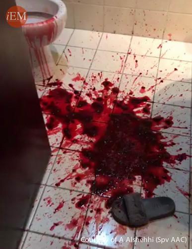720 - variceal bleeding