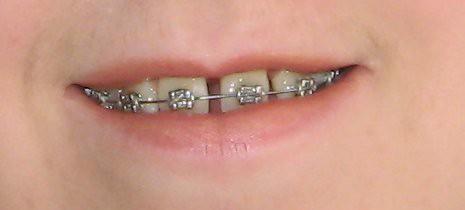braced smile