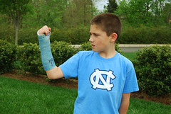 Right Arm Cast by jeffreylcohen on Flickr