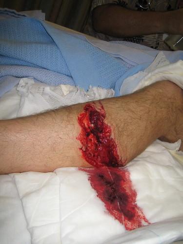shark bite wound 2