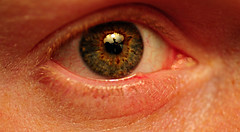 Diabetes365 Day 34- December 4, 2007- Stye on ...