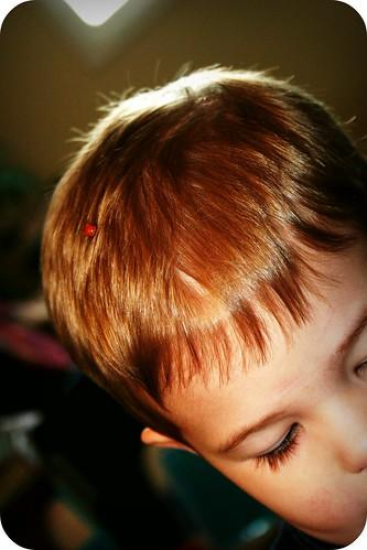 Ladybug on His Head