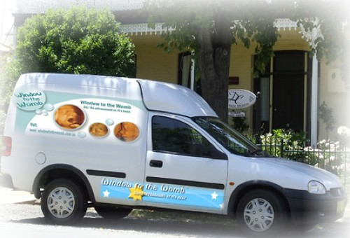 white panel van with badly photoshopped Window to your Womb ads on the outside