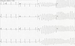 Hypokalaemia/long QT/Torsades de pointes