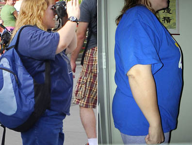 Left photo is one that prompted the lifestyle change. Right is from October 2008.