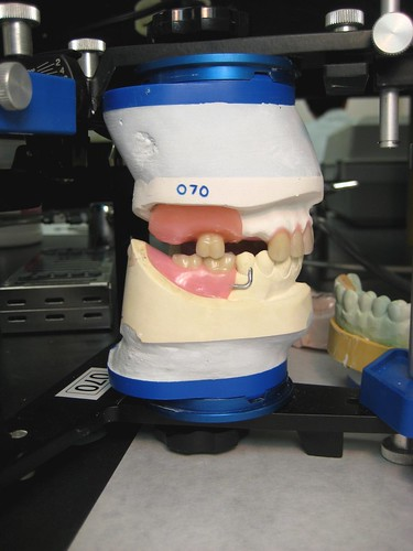 Dental lab work