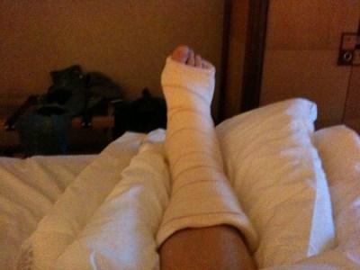 my broken ankle brussels