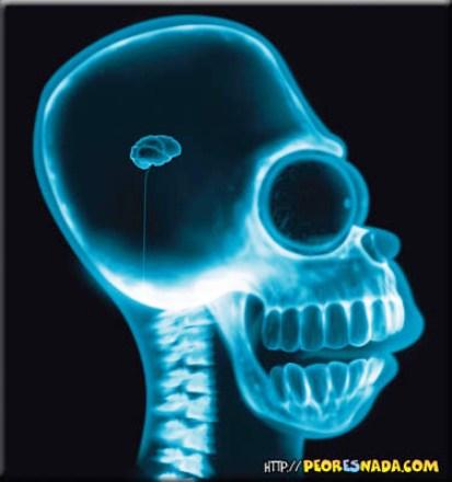 Homer Simpsosn cerebro