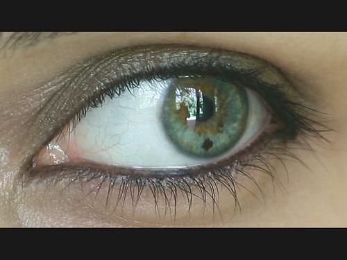 She has a cross in her eye!!!