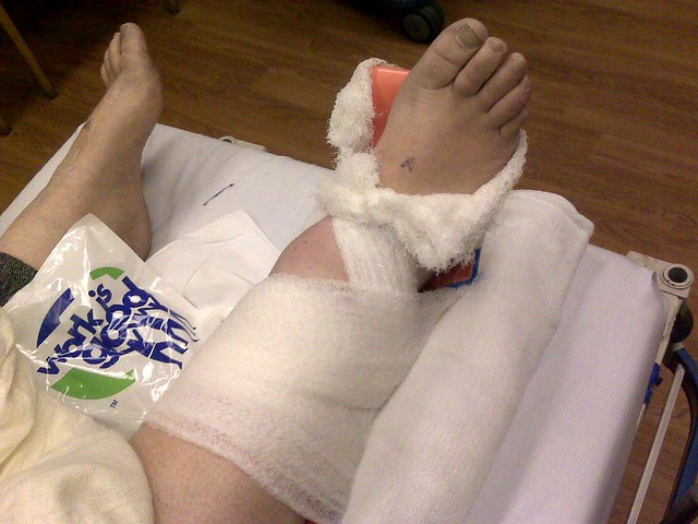 The Broken Ankle