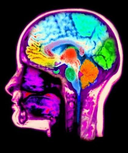 Cerebro Homosexual - Gay Brain