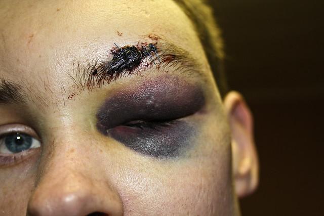 Map Eye Blood Vessel