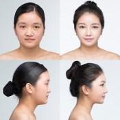 Phẫu thuật khuôn mặt ở Thừa Thiên Huế